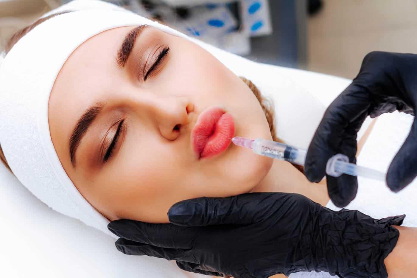 Punjenje usana hijaluronom iskustva