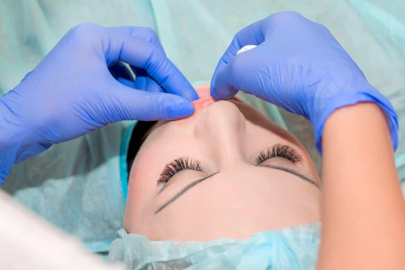 Trajno povećanje usana